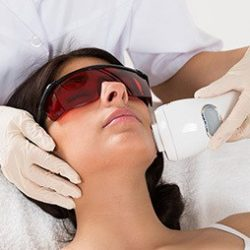 Close-up Of Beautician Giving Epilation Laser Treatment On Woman's Face